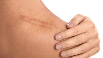Photo of Blizny – część druga – mikropunktura – terapia blizn