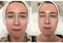 Photo of Trądzik pospolity – efekty terapii w Twoje mini spa